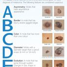 Early detection of moles significantly reduce the chance of skin cancer. That is why learning the AB