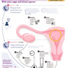 Fertilization in Vitro Treatment Infographic