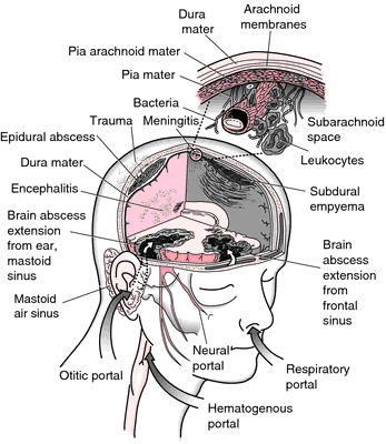The term meningitis does not refer to a specific disease entity but rather to the pathologic conditi