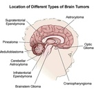 Common brain tumors in children and their common locations