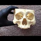 The Skull Bones - Exterior - Superior and Anterior/Lateral  Views