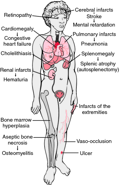These are some of the complications caused by sickle cell disease