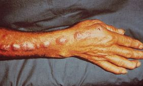 Lymphocutaneous nodules of Sporothrix schenckii