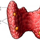 Hypoparathyroidism. Often occurs as a result (unintended) of parathyroid or thyroid surgery.