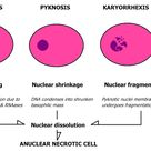 Nuclear change is distinct from chemical change in that elements change