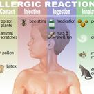 Allergic reactions are inappropriate responses of the immune system
