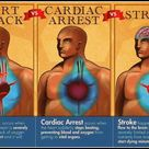 Key Differences Between Cardiac Arrest, Heart Attack and Stroke - Chesapeake AED Services