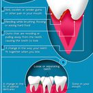 Gum disease is often silent, meaning symptoms may not appear until an advanced stage of the disease