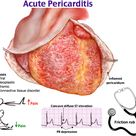 Acute pericarditis is a type of pericarditis