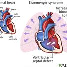 eisenmenger syndrome - Google Search