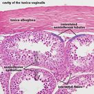 Male Reproductive - Testis.