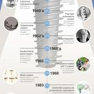 A Brief History of Dental Implants