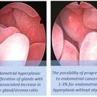 Endometrial Hyperplasia: proliferation of glands with an associated increase in the gland/stroma rat