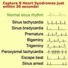 arrhythmias and treatments