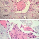 Figure from Squamous Differentiation and Cytokeratin Expression in an Osteosarcoma