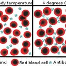 Cold agglutination - at body temperature, the antibodies do not attach to the red blood cells. At lo