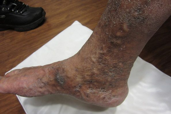 Burning and itchy skin is often a secondary problem caused by venous disease.