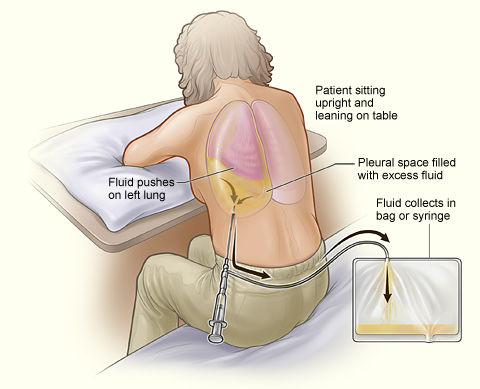 During the procedure, to facilitate removal of fluid from the pleural space, position the client sit