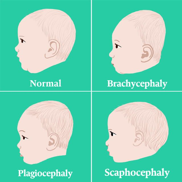There are ways to prevent baby from developing flat head syndrome.