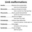 Congenital limb malformations occur in 1 in 500 to 1 in 1000 human live birth