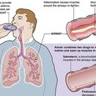 Overuse, Safety Questions Cloud Advair?s Ascent to Asthma Blockbuster - ProPublica