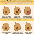 Breast Cancer warning signs that need Medical Attention.