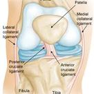Anterior Cruciate Ligament ACL Injuries