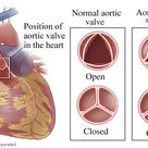 Aortic Stenosis - Aortic valve