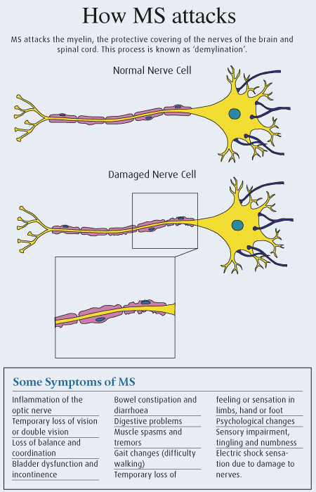Explains how the nerves are damaged in MS.. and why we struggle to do everyday tasks.   #health #MS