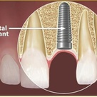 Dental Implants- If you are missing one or more teeth and would like to restore your ability to smil