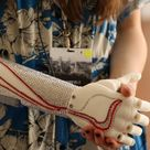 Open Bionics have produced a 3D printed bionic hand that could benefit thousands.