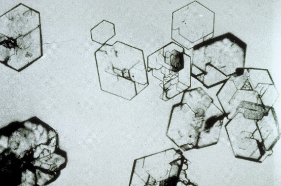 Cysteine crystals. Hexagons. Related to cysteinuria. Auto rec. COLA amino acids affected.