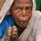 Leprosy or Hansen's disease, is a chronic incurable disease caused by the bacteria Mycobacterium lep