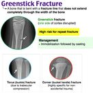 A greenstick fracture is a fracture in a young,
