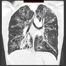 Cystic fibrosis | Radiology Reference Article | Radiopaedia.org