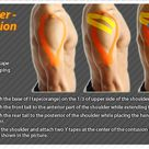 Kinesiology taping instructions for shoulder contusions #ktape #ares #shoulder