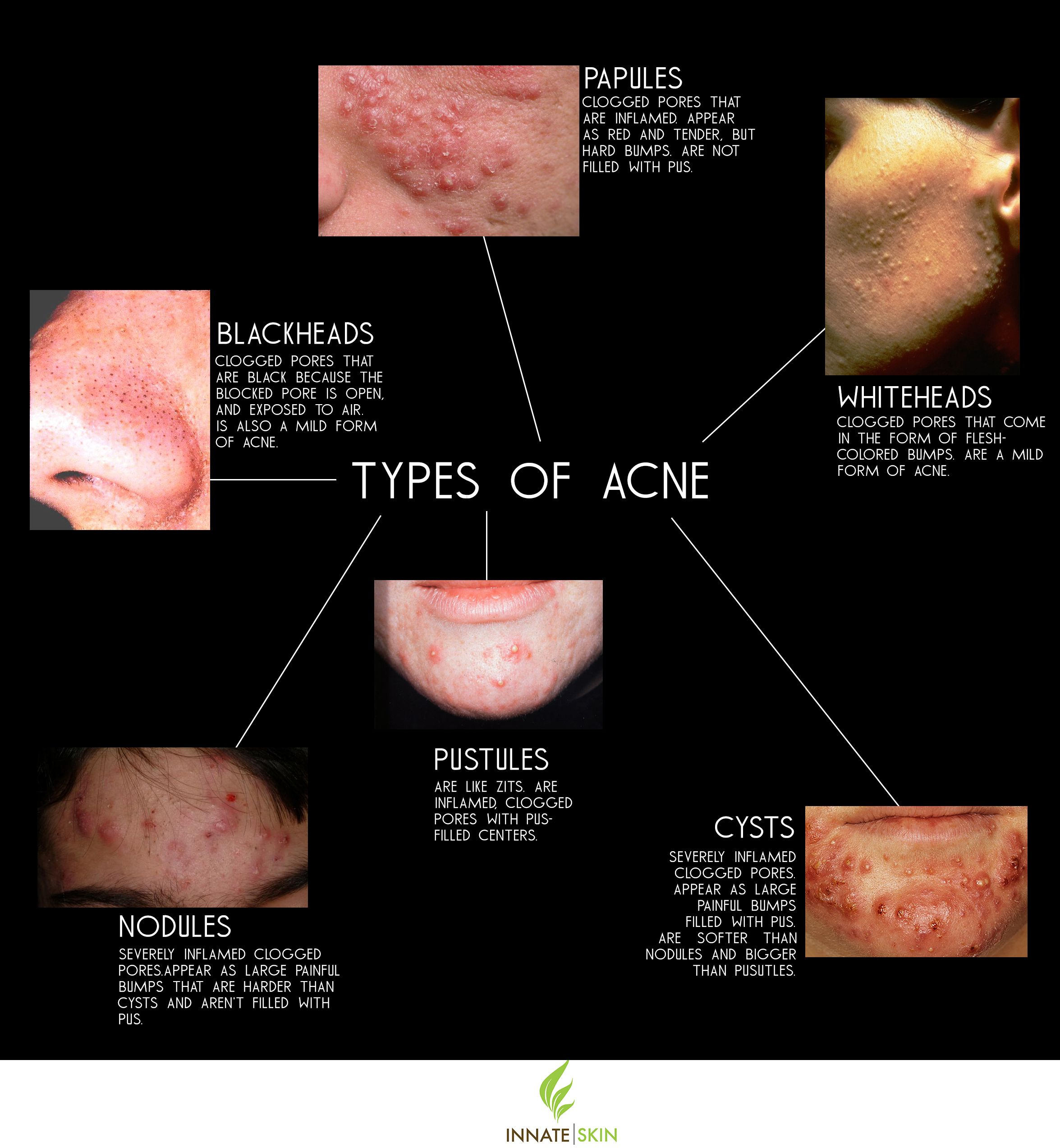 what acne types you're dealing with if you're serious about treating it as soon as possible.
