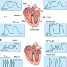 myocardial infarction name atrial fibrillation