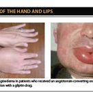 ACE inhibitor angioedema due to increased bradykinin levels as a result of ACE inhibition