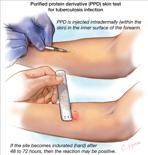 Tuberculosis Skin Test (PPD)