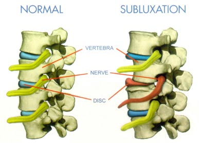 Visual explanation of subluxation in cervical spine.  #EhlersDanlosSyndrome Awareness #EDS