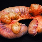 Small intestine with diverticulosis