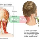 Headache Pain - Occipital Neuralgia with Nerve Block Injection.