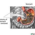 """Gastric Lavage and Poisoning in Children: AKA """"stomach pumping""""."""