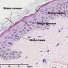 Stratified Squamous Epithelia - top layer (purple) - light pink Connective tissue under