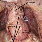 Coronary artery by-pass surgery is used to provide circulation to the heart