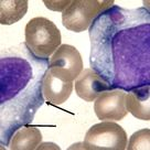 Infectious Mononucleosis - 1/Link to ASH Image Bank