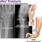 A Colles' fracture is a type of fracture of the distal forearm
