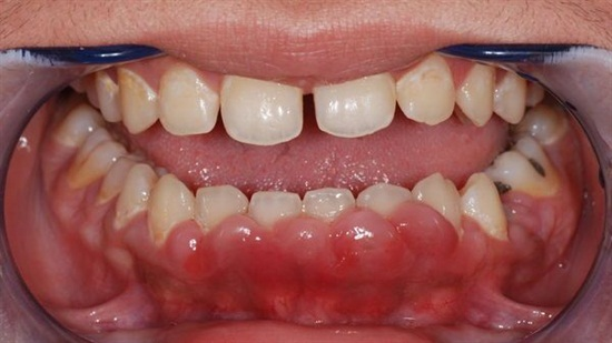 Gingival enlargementis is an increase in the size of the gingiva