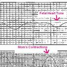 How to monitor fetal heart tone of early, late, and variable decelerations during labor.